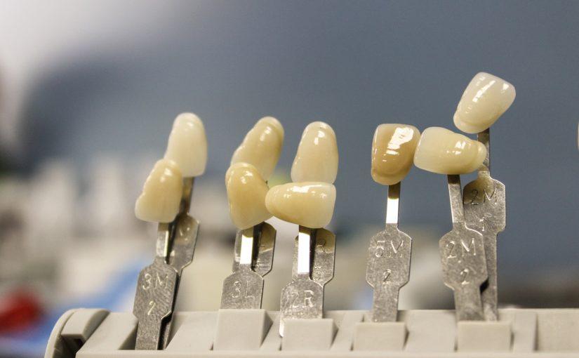 Piękne zdrowe zęby również świetny cudny uśmiech to powód do płenego uśmiechu.